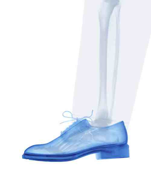 David Arky photograph: leg shoe